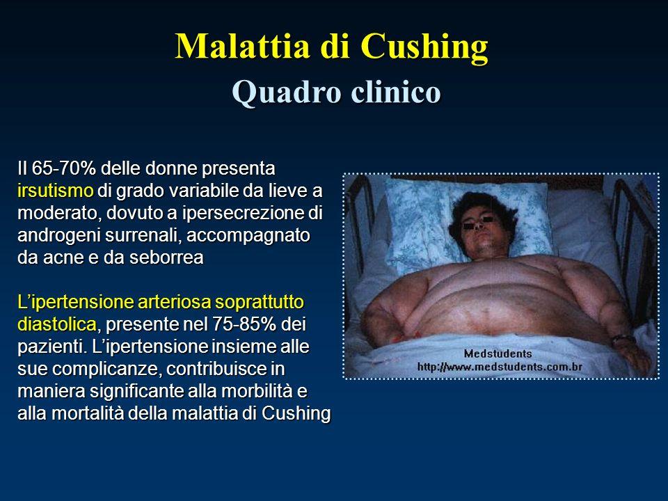 Malattia di Cushing Quadro clinico