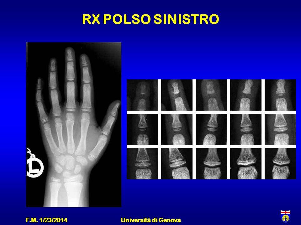 RX POLSO SINISTRO F.M. 3/27/2017 Università di Genova