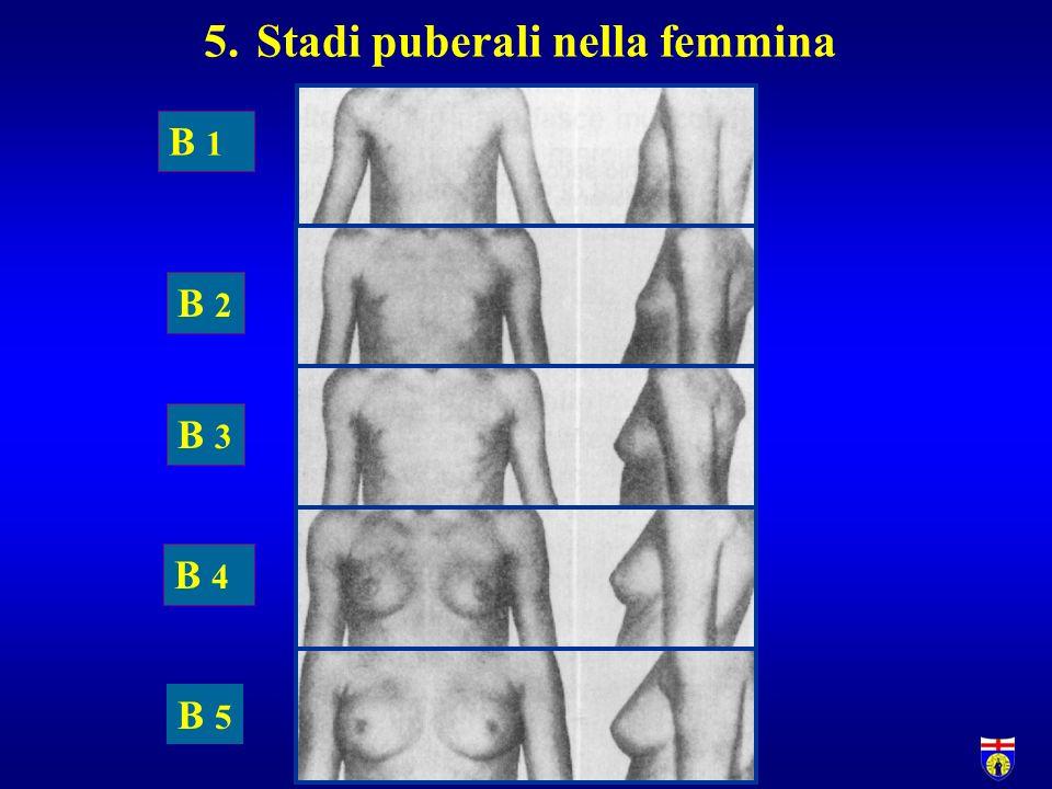 Stadi puberali nella femmina