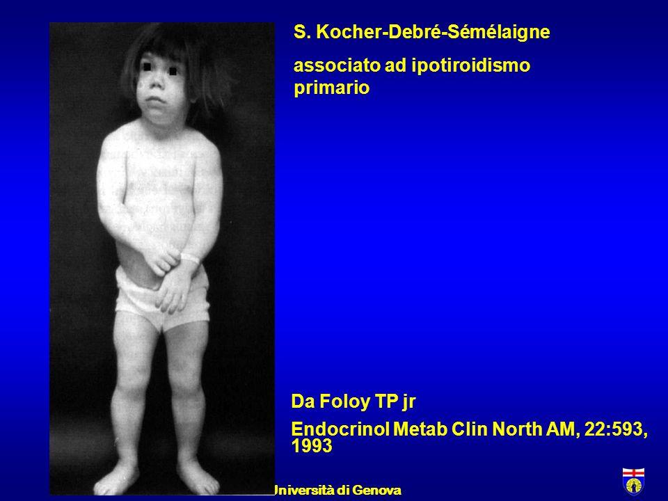 S. Kocher-Debré-Sémélaigne associato ad ipotiroidismo primario