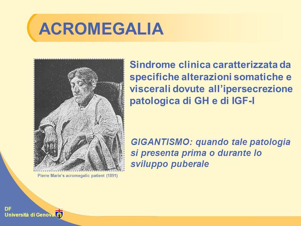 ACROMEGALIA Sindrome clinica caratterizzata da specifiche alterazioni somatiche e viscerali dovute all'ipersecrezione patologica di GH e di IGF-I.