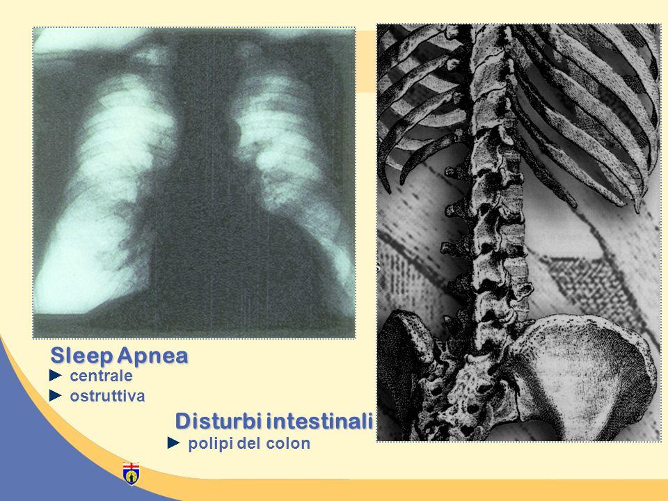 centrale ostruttiva Sleep Apnea Disturbi intestinali polipi del colon