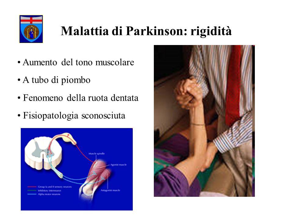 Malattia di Parkinson: rigidità
