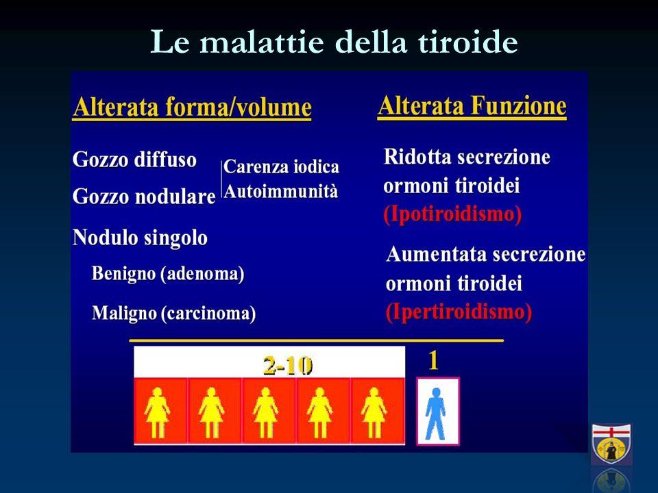 Le malattie della tiroide