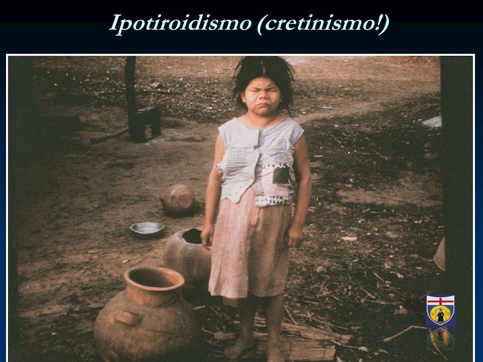 Ipotiroidismo (cretinismo!)