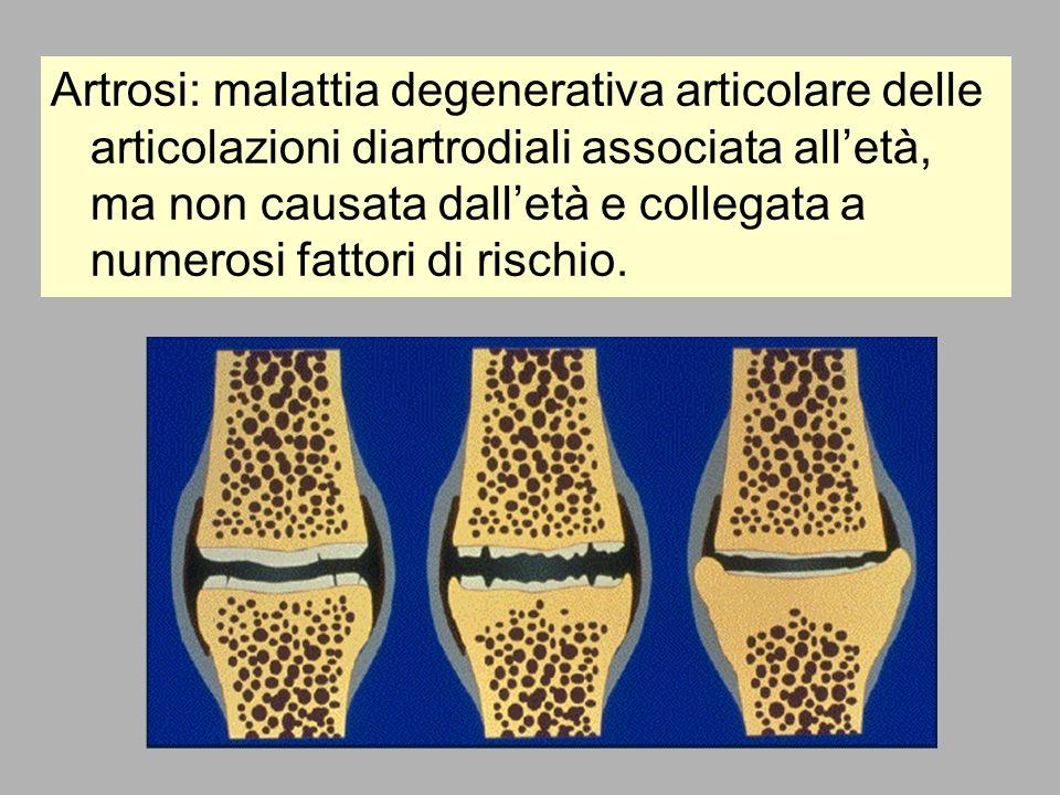 Artrosi: malattia degenerativa articolare delle articolazioni diartrodiali associata all'età, ma non causata dall'età e collegata a numerosi fattori di rischio.