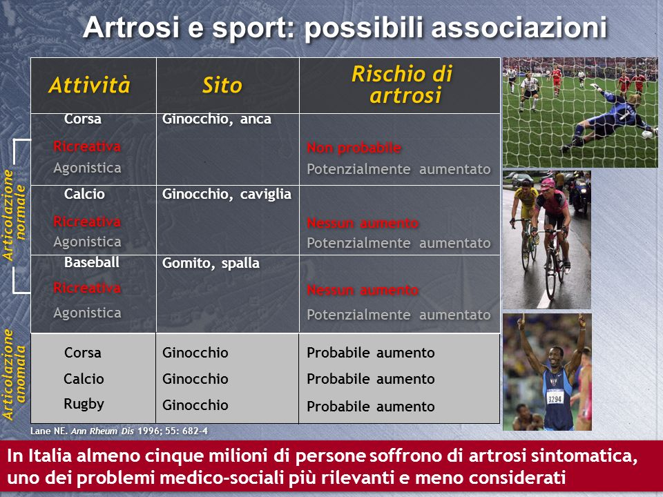 Artrosi e sport: possibili associazioni