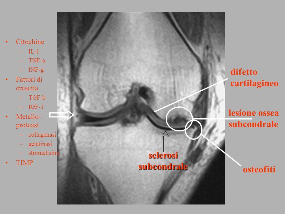 difetto cartilagineo lesione ossea subcondrale sclerosi subcondrale