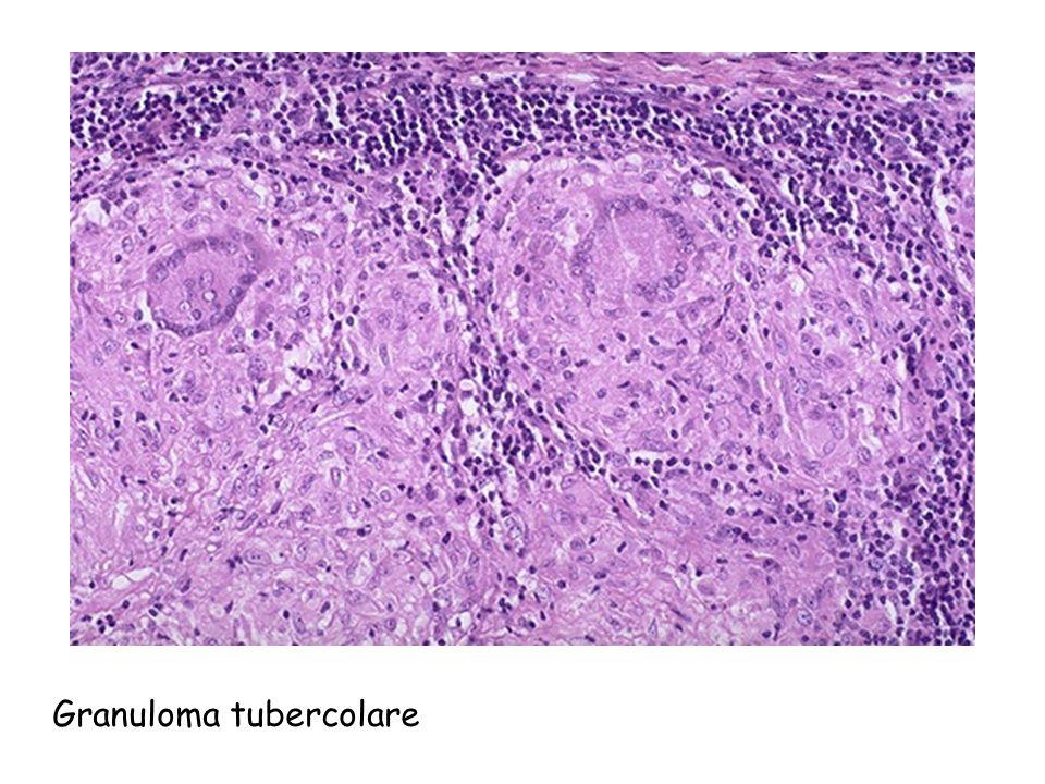 Granuloma tubercolare