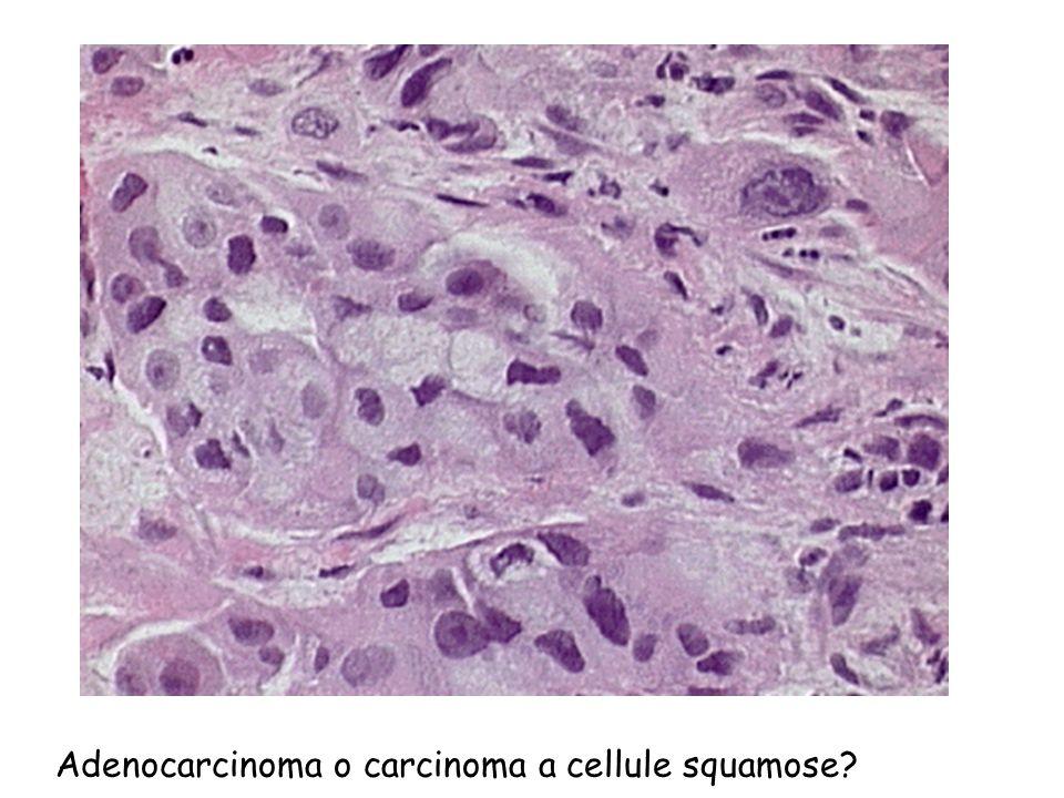 Adenocarcinoma o carcinoma a cellule squamose