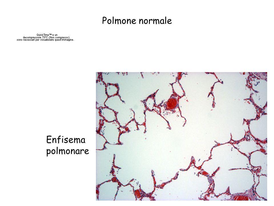 Polmone normale Enfisema polmonare