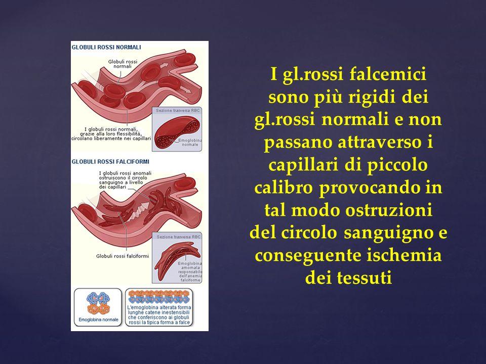 I gl. rossi falcemici sono più rigidi dei gl