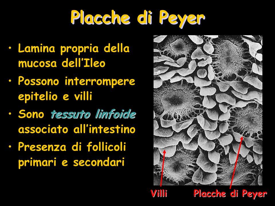 Placche di Peyer Lamina propria della mucosa dell'Ileo
