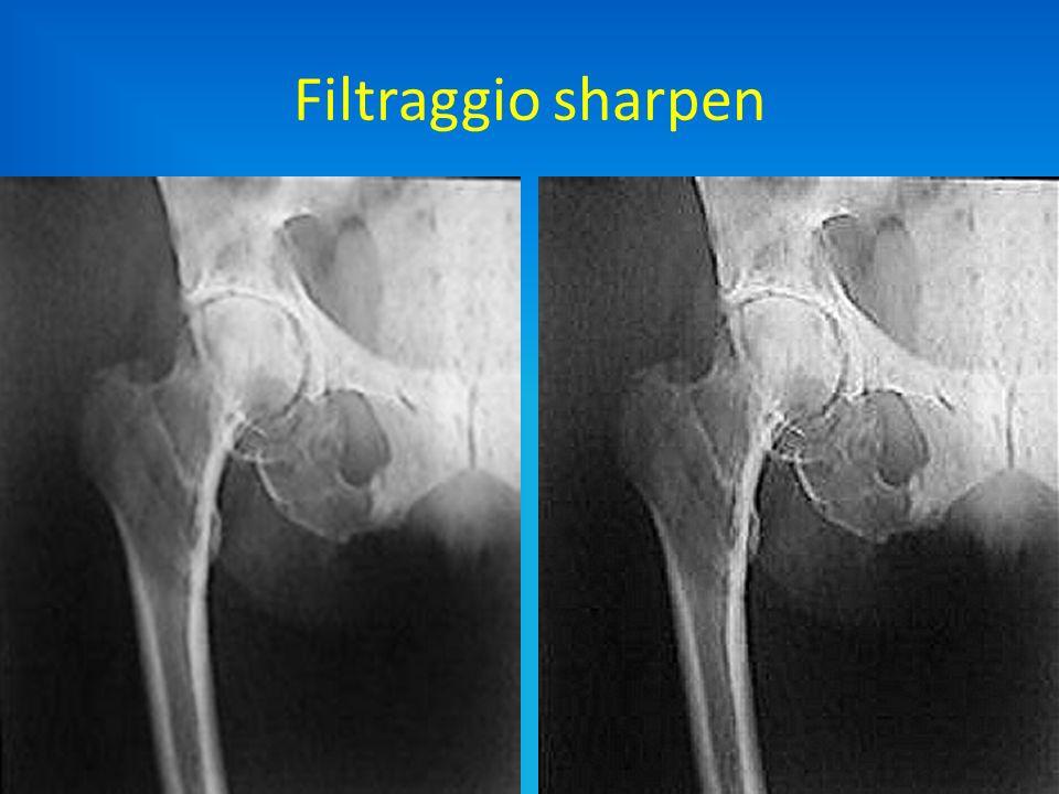 Filtraggio sharpen