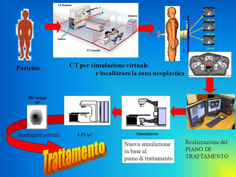 Trattamento CT per simulazione virtuale Paziente