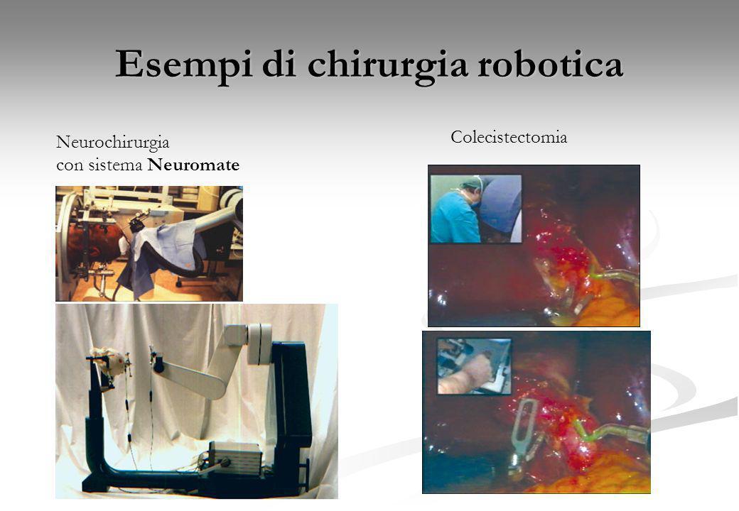Esempi di chirurgia robotica