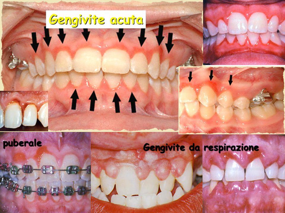 Gengivite acuta puberale Gengivite da respirazione