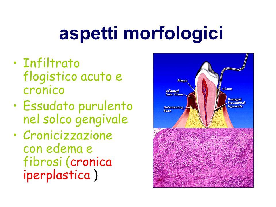 aspetti morfologici Infiltrato flogistico acuto e cronico