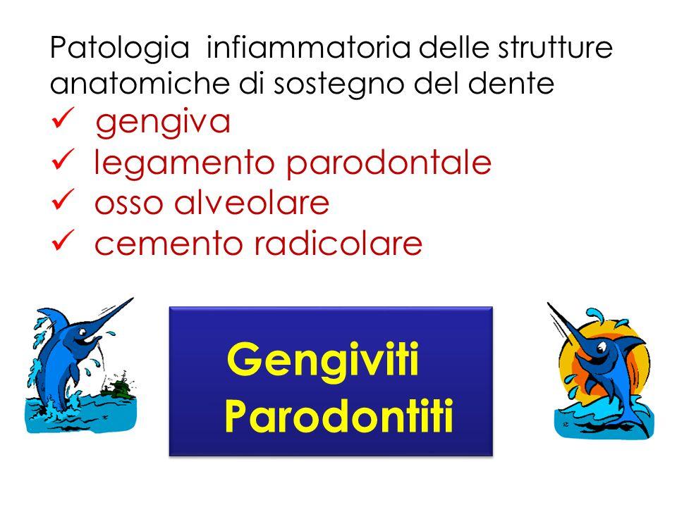 Gengiviti Parodontiti gengiva legamento parodontale osso alveolare