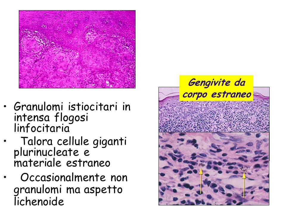 Granulomi istiocitari in intensa flogosi linfocitaria