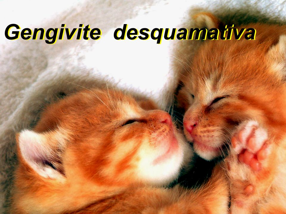 Gengivite desquamativa