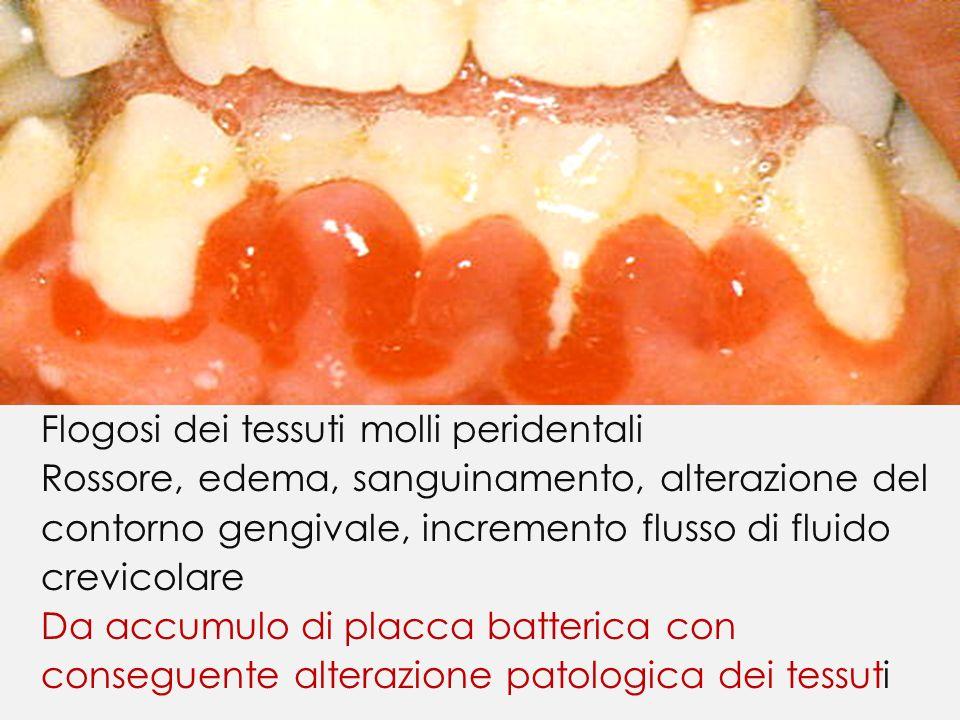 Flogosi dei tessuti molli peridentali Rossore, edema, sanguinamento, alterazione del contorno gengivale, incremento flusso di fluido crevicolare Da accumulo di placca batterica con conseguente alterazione patologica dei tessuti