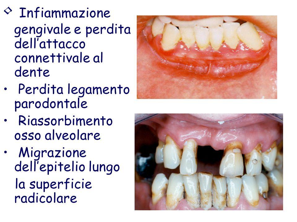 Infiammazione gengivale e perdita dell'attacco connettivale al dente