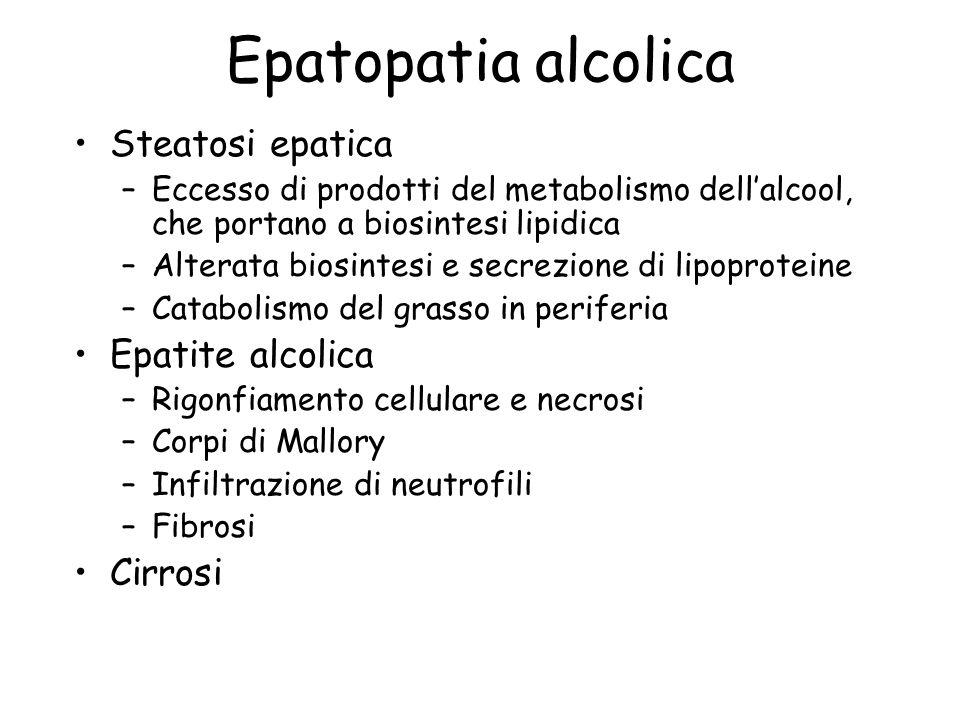 Epatopatia alcolica Steatosi epatica Epatite alcolica Cirrosi