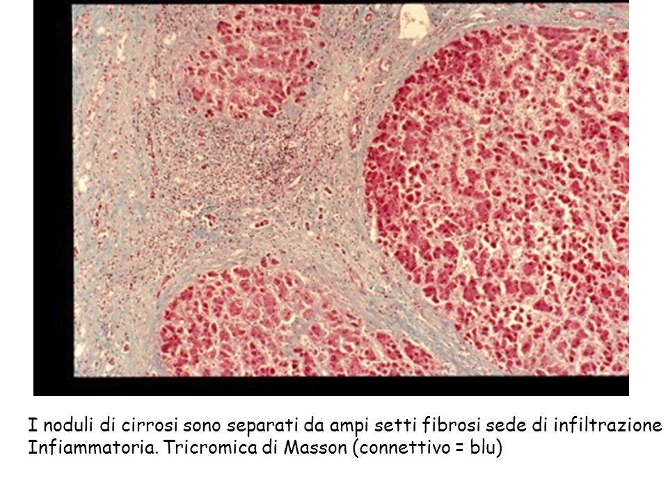 I noduli di cirrosi sono separati da ampi setti fibrosi sede di infiltrazione