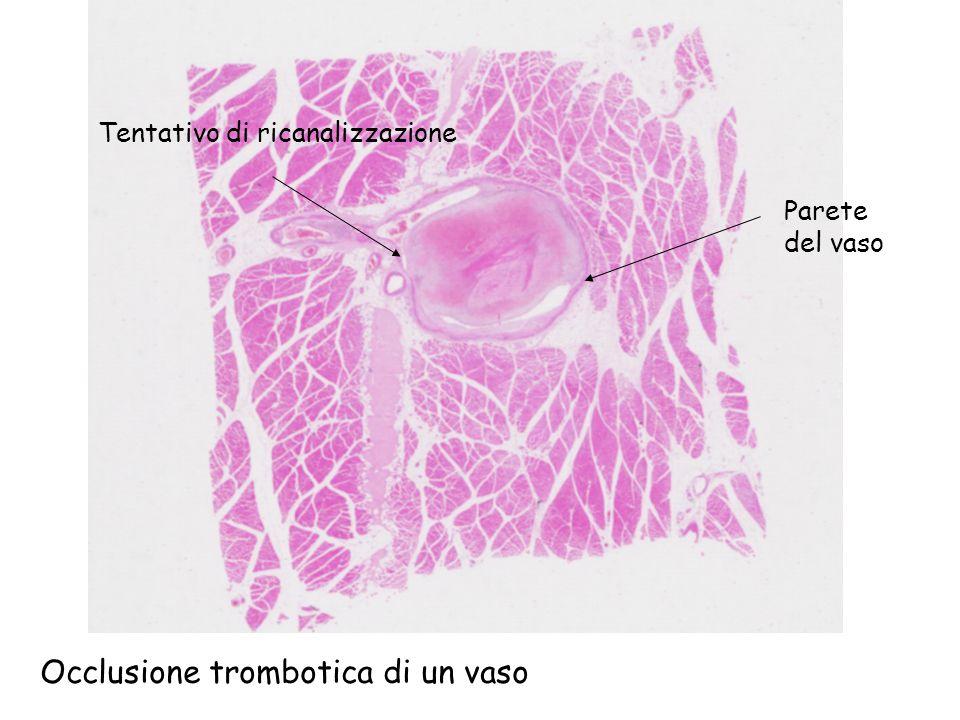 Occlusione trombotica di un vaso