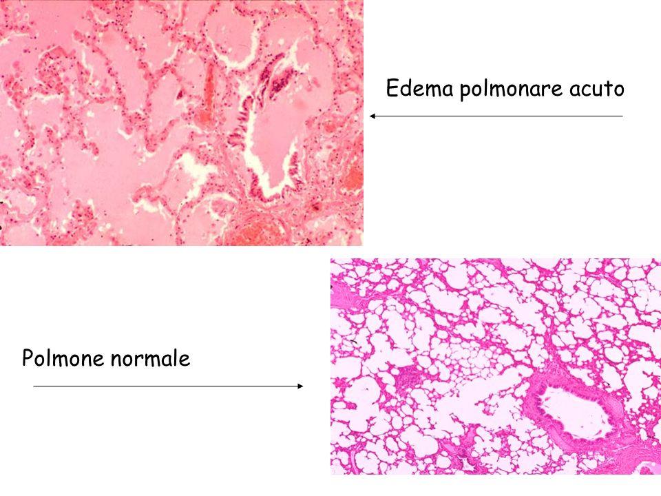 Edema polmonare acuto Polmone normale