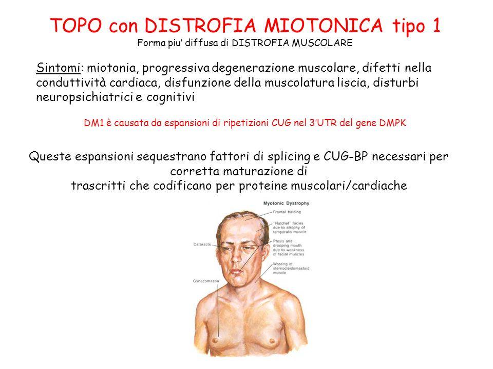 TOPO con DISTROFIA MIOTONICA tipo 1