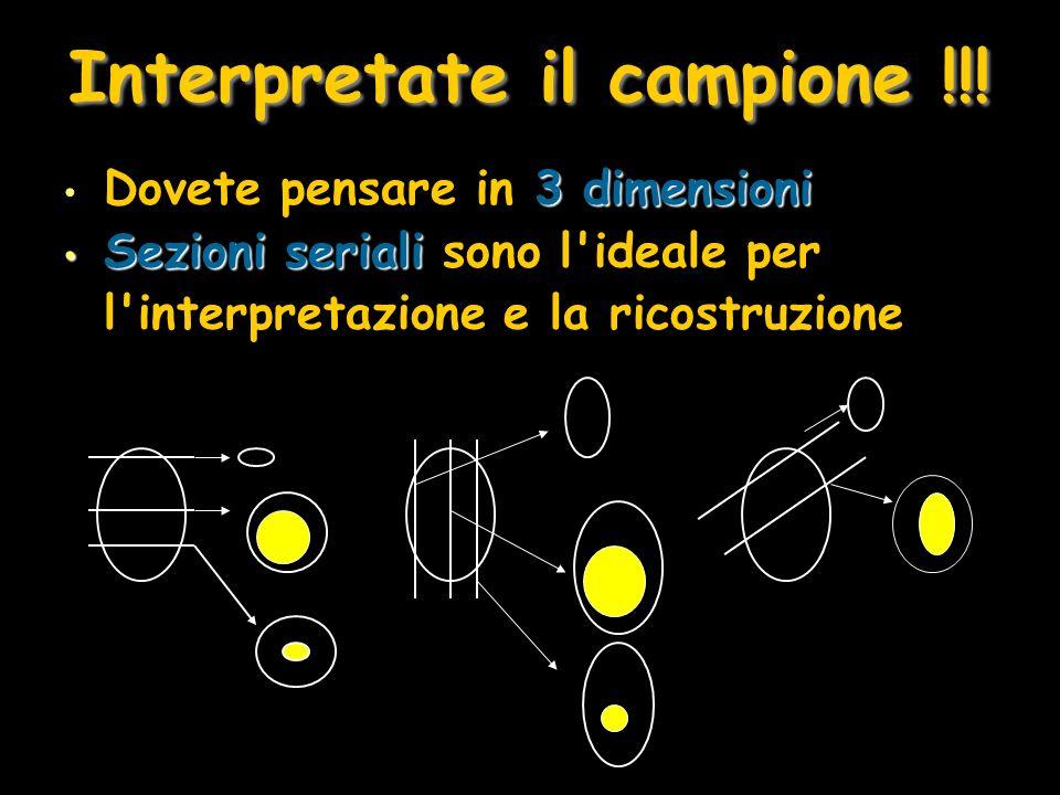 Interpretate il campione !!!