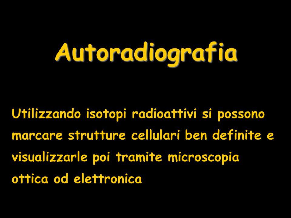 Autoradiografia