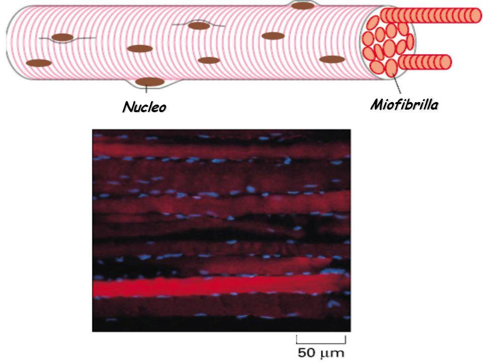 Nucleo Miofibrilla
