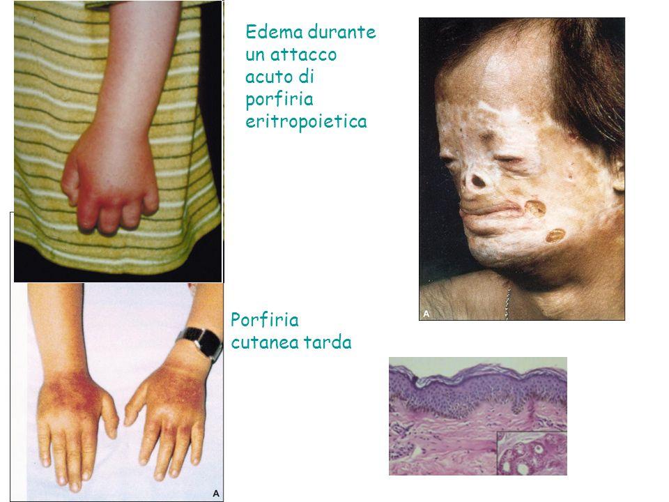 Edema durante un attacco acuto di porfiria eritropoietica