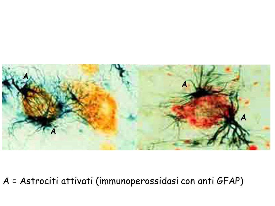 A = Astrociti attivati (immunoperossidasi con anti GFAP)