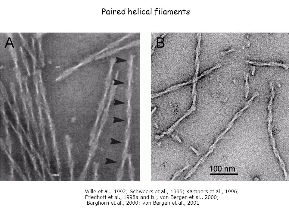Paired helical filaments