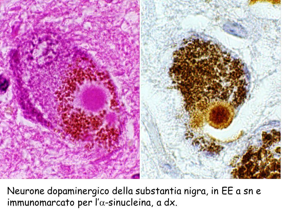 Neurone dopaminergico della substantia nigra, in EE a sn e