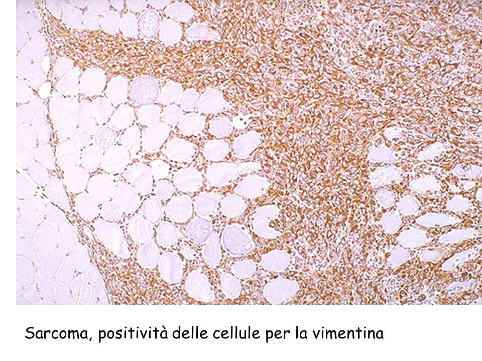 Sarcoma, positività delle cellule per la vimentina