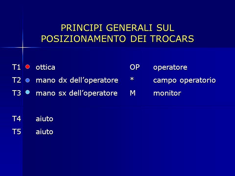 PRINCIPI GENERALI SUL POSIZIONAMENTO DEI TROCARS