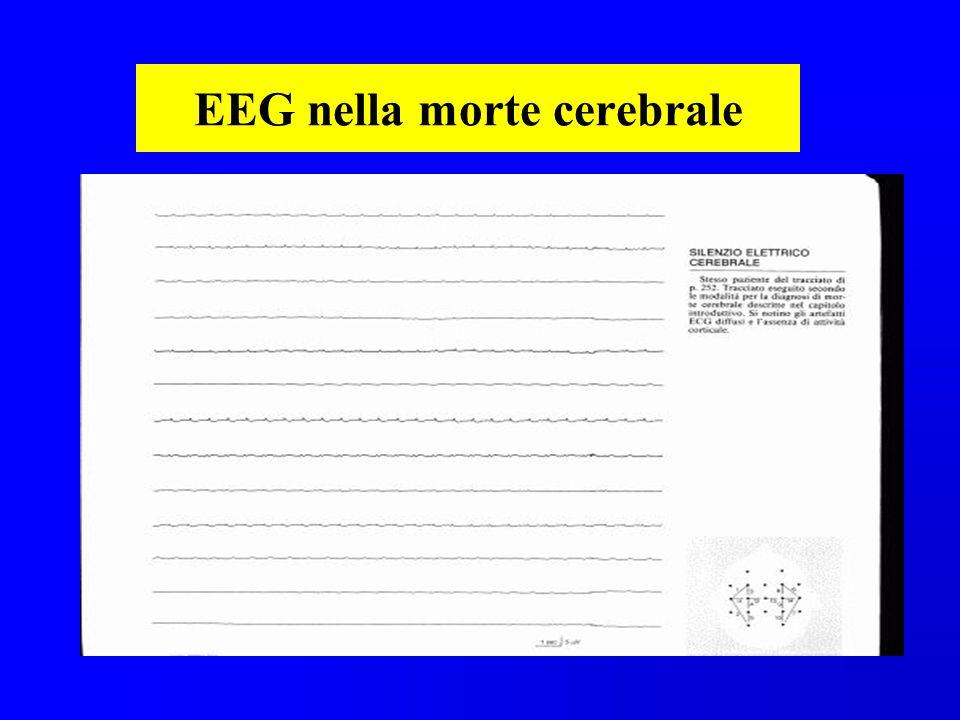 EEG nella morte cerebrale