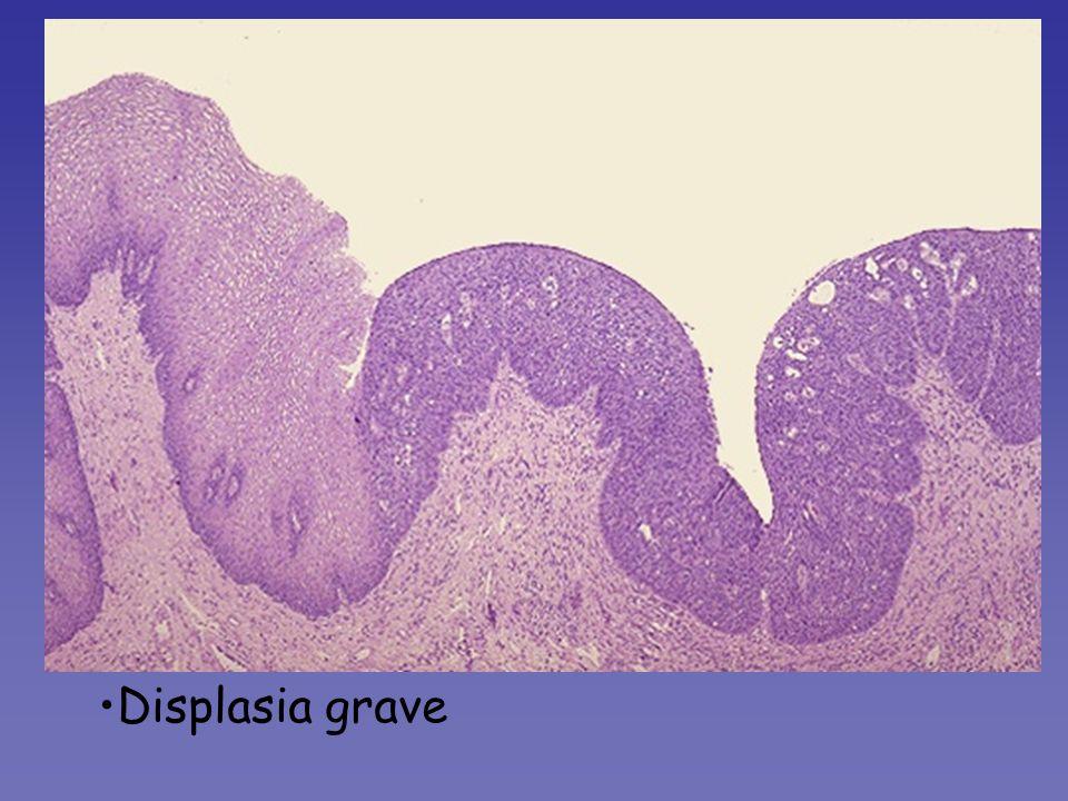 Il normale epitelio malpighiano, a sn, perde a dx gli aspetti del normale differenziamento (scomparsa degli elementi tipicamente spisosi, con citoplasma chiaro e nucleo piccolo), ed assume le caratteristiche di tessuto in attiva proliferazione (cellule con ridotto rapporto nucleo/citoplasma, nucleo intensamente ematossilinofilo).