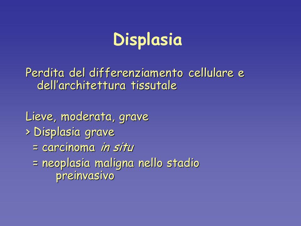 Displasia Perdita del differenziamento cellulare e dell'architettura tissutale. Lieve, moderata, grave.