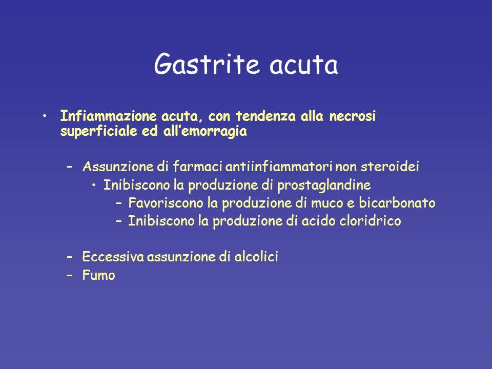 Gastrite acuta Infiammazione acuta, con tendenza alla necrosi superficiale ed all'emorragia. Assunzione di farmaci antiinfiammatori non steroidei.
