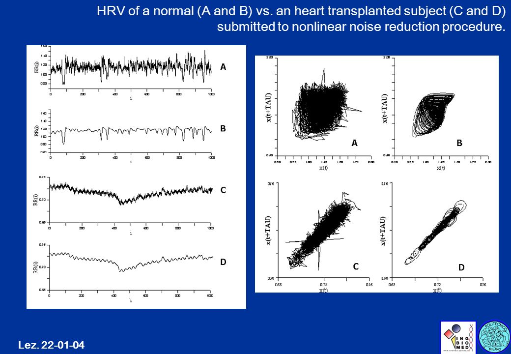 HRV of a normal (A and B) vs