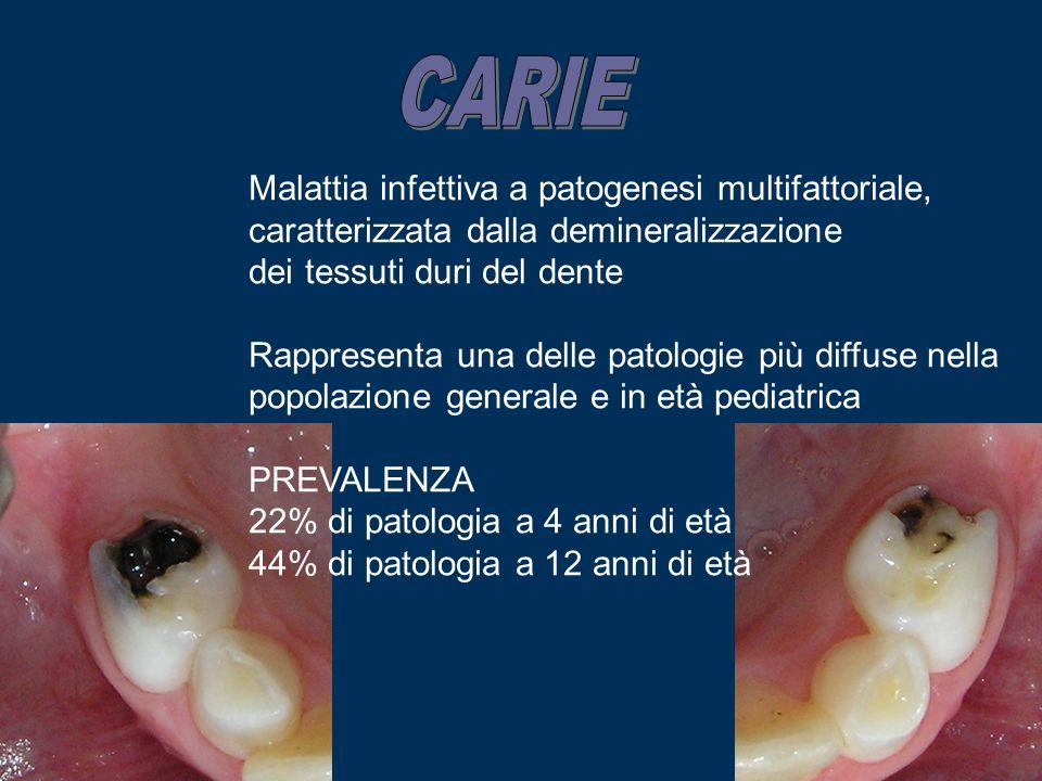 CARIE Malattia infettiva a patogenesi multifattoriale, caratterizzata dalla demineralizzazione. dei tessuti duri del dente.
