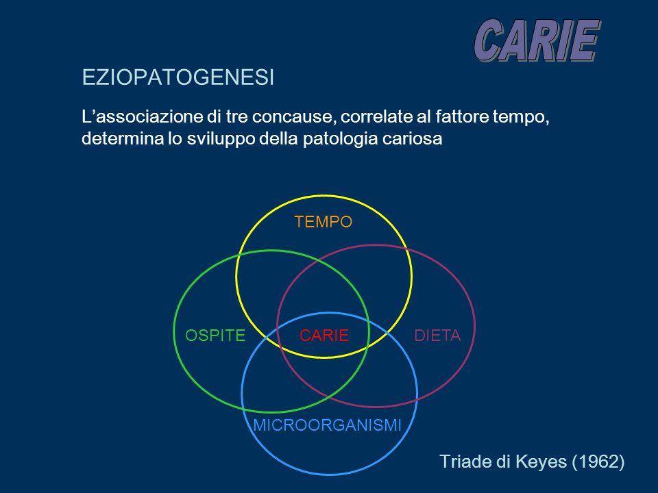 CARIE EZIOPATOGENESI. L'associazione di tre concause, correlate al fattore tempo, determina lo sviluppo della patologia cariosa.
