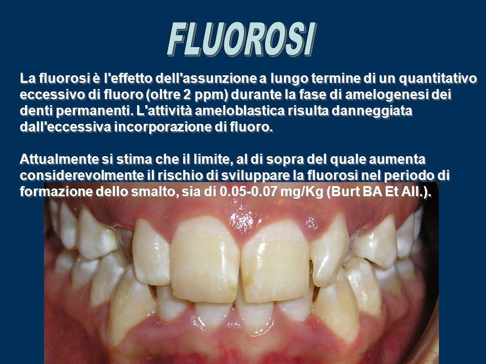 FLUOROSI