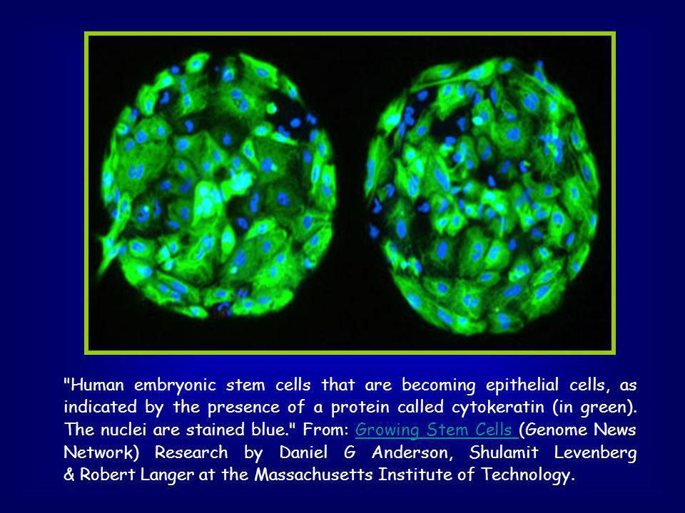 Human embryonic stem cells that are becoming epithelial cells, as indicated by the presence of a protein called cytokeratin (in green).